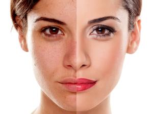 Shahnaz Husain S Beauty Tips For Skin Pigmentation