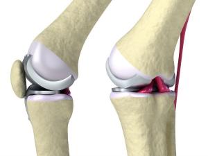 What Happens In Your Body When A Bone Breaks?