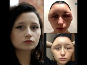 Woman S Head Expanded After She Used Hair Dye
