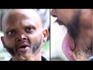 Yagya Bahadur Katuwal Is The Only Man Who Can Lick His Forehead