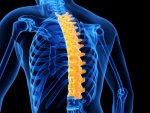Kyphosis Causes Symptoms Types Treatment