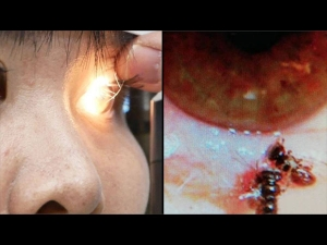 Disgusting Case Of Live Bees Found In Woman S Eye