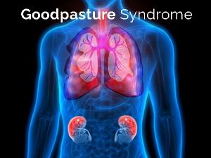 Goodpasture Syndrome Causes Symptoms Treatment