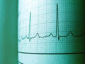 Wolff Parkinson White Syndrome Causes Symptoms Treatment