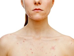 Home Remedies To Treat Chest Acne