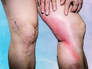 Phlebitis Types Causes Symptoms Treatment Prevention