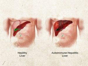 Autoimmune Hepatitis Causes Types Symptoms Treatment