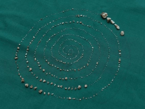 526 Teeth Removed From A 7 Year Old Boys Mouth In Chennai