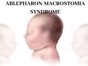 Ablepharon Macrostomia Syndrome Causes Symptoms Diagnosis Treatment