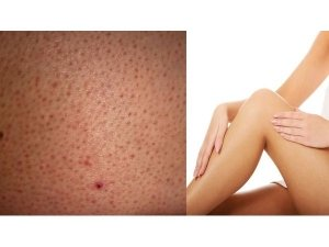 Home Remedies For Strawberry Legs
