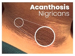 Acanthosis Nigricans Causes Symptoms Treatment Prevention