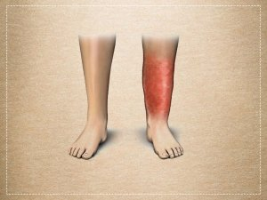 Cellulitis Types Causes Symptoms Treatment And Prevention
