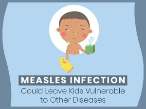 Measles Cause Immune Amnesia Increases Risk Of Other Diseases