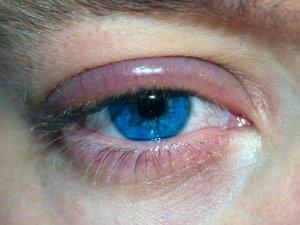 Blepharitis Types Causes Symptoms Treatment Prevention