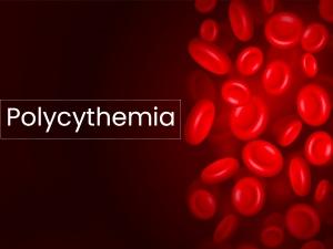 Polycythemia Types Causes Symptoms Risks Treatment