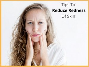 Tips To Reduce Skin Redness In The Winter