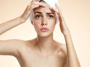 Causes Of Acne On Forehead