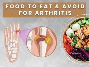 Foods To Eat And Avoid For Arthritis