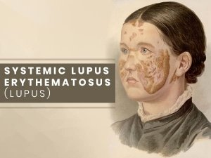 Systemic Lupus Erythematosus Causes Symptoms Treatment Prevention
