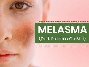 Melasma Causes Symptoms Risks Treatment Prevention
