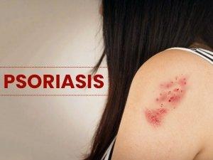 Psoriasis Types Causes Symptoms Risks Treatment
