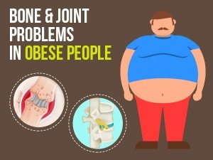 Bone And Joint Problems In Obese People