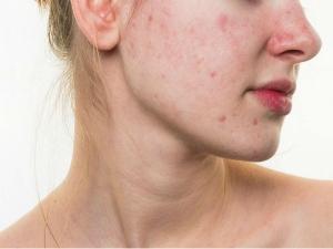 Best Homemade Face Masks For Acne