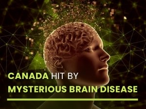 Mysterious Brain Syndrome Reported In Canada Everything You Need To Know