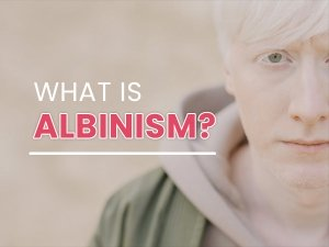 What Is Albinism Types Causes Symptoms Complications Treatments