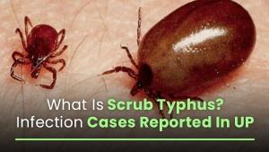 Scrub Typhus Causes Symptoms Prevention Treatment