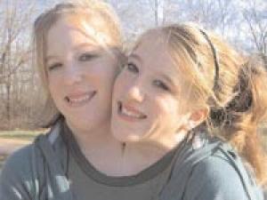 Dicephalus Twins Hensel Brittany Hensel