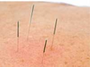 Acupuncture No Help Ivf