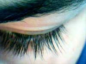 Glaucoma Brain Eye