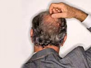 Home Remedies Hair Growth Bald Spots 050411 Aid