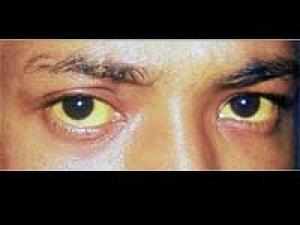 Jaundice Causes Symptoms 190411 Aid