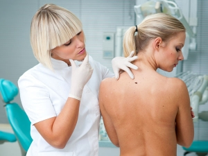 Warning Signs Of Melanoma