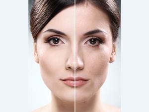 Ten Ways To Treat Dull Skin
