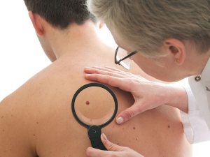 Warning Signs Your Mole is Sending