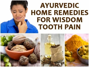 Fifteen Ayurvedic Remedies For Wisdom Tooth Pain