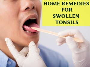 Most Effective Home Remedies For Swollen Tonsils