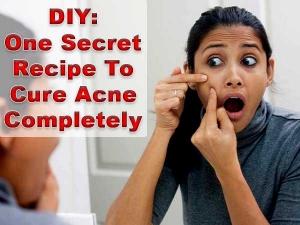 Diy Egg White Honey And Lemin Juice Mask For Acne