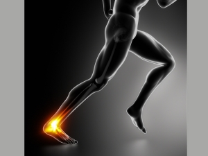 Causes And Treatment Of Achilles Tendon Rupture