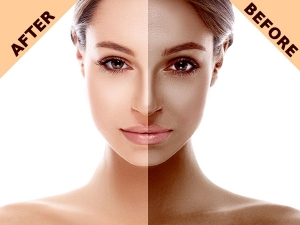 Simple Yet Powerful Homemade Face Pack To Remove Suntan