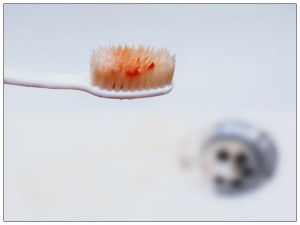 Weird Reasons Behind Bleeding Gums