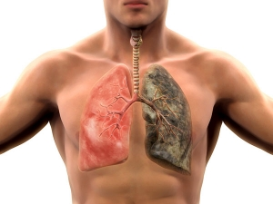 Common Things In You House That Damage Your Lungs