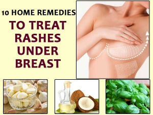 Ten Home Remedies To Treat Rashes Under Breast