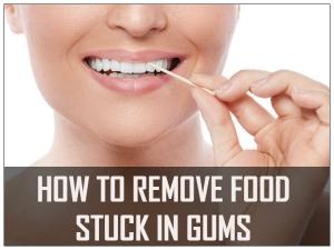 Food Stuck In Gums