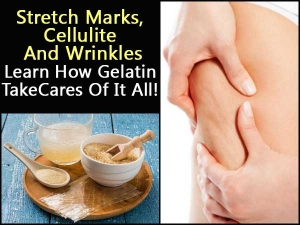 Stretch Mark Cellulite Wrinkles Learn How Gelatin Take Cares Of It All