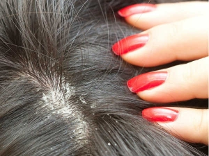 Natural Ways To Get Rid Of Severe Dandruff