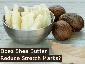 Does Shea Butter Reduce Stretch Marks